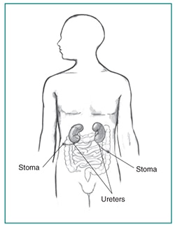 Drawing of a cutaneous ureterostomy. Labels point to two stomas and two ureters.