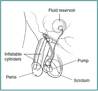 Drawing of an inflatable implant to treat erectile dysfunction. An erection is produced by squeezing a small pump (a) implanted in a scrotum. The pump causes fluid to flow from a reservoir (b) residing in the lower pelvis to two cylinders (c) residing in the penis. The cylinders expand to create the erection.