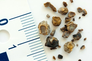 Kidney stones of varying sizes and shapes.