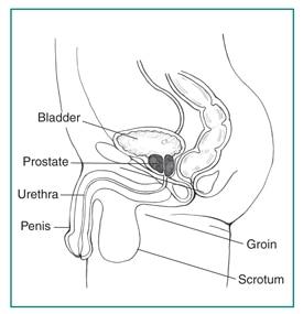 a prosztatitis- szulfától