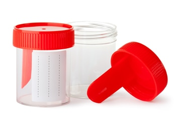 Small, empty plastic jars, with lids, that are used for urine samples.