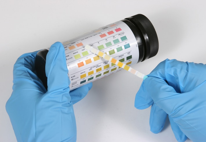 A laboratory technician compares a urinalysis strip to a table of results.