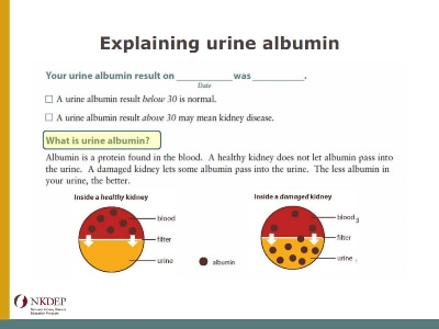 Explaining Urine Albumin