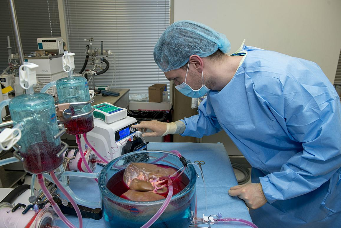 Doctor looking at a liver.