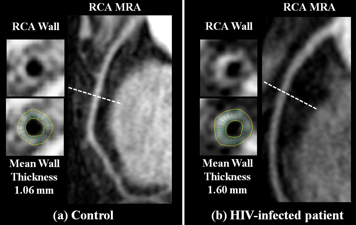 side-by-side pictures of the RCA walls of two different cells