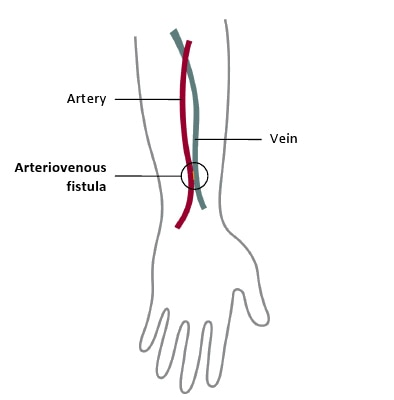 A schematic of an arteriovenous or AV fistula