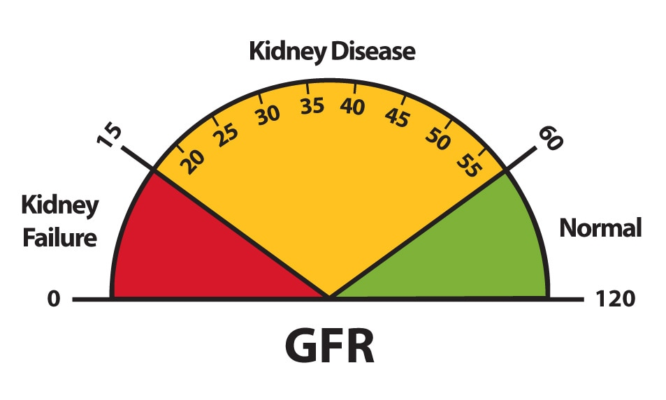 A graphic of a speedometer-like dial that depicts GFR results of 0 to 15 as kidney failure, 15 to 60 as kidney disease, and 60 to 120 as normal