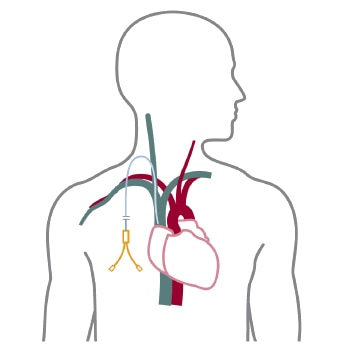 A schematic of a catheter for temporary access
