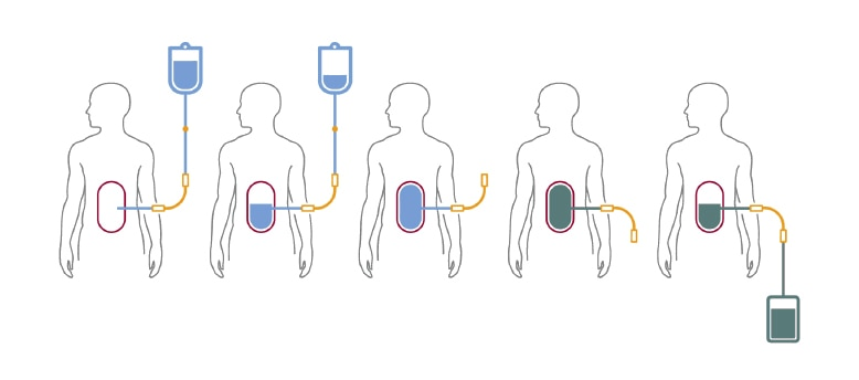 A schematic showing during a cycle of peritoneal dialysis or exchange