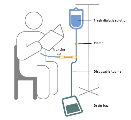 A schematic of a person receiving continuous ambulatory peritoneal dialysis exchange while reading