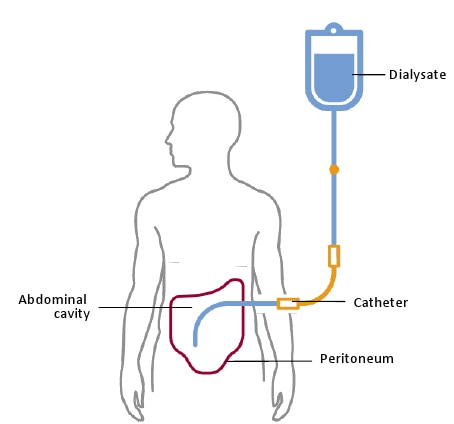 "A schematic showing that the peritoneal membrane is the semipermeable ""filter"" in peritoneal dialysis"