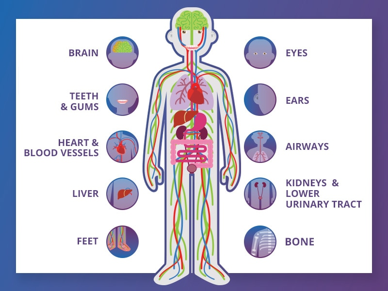Diagram of body parts and organs that can be affected by diabetes