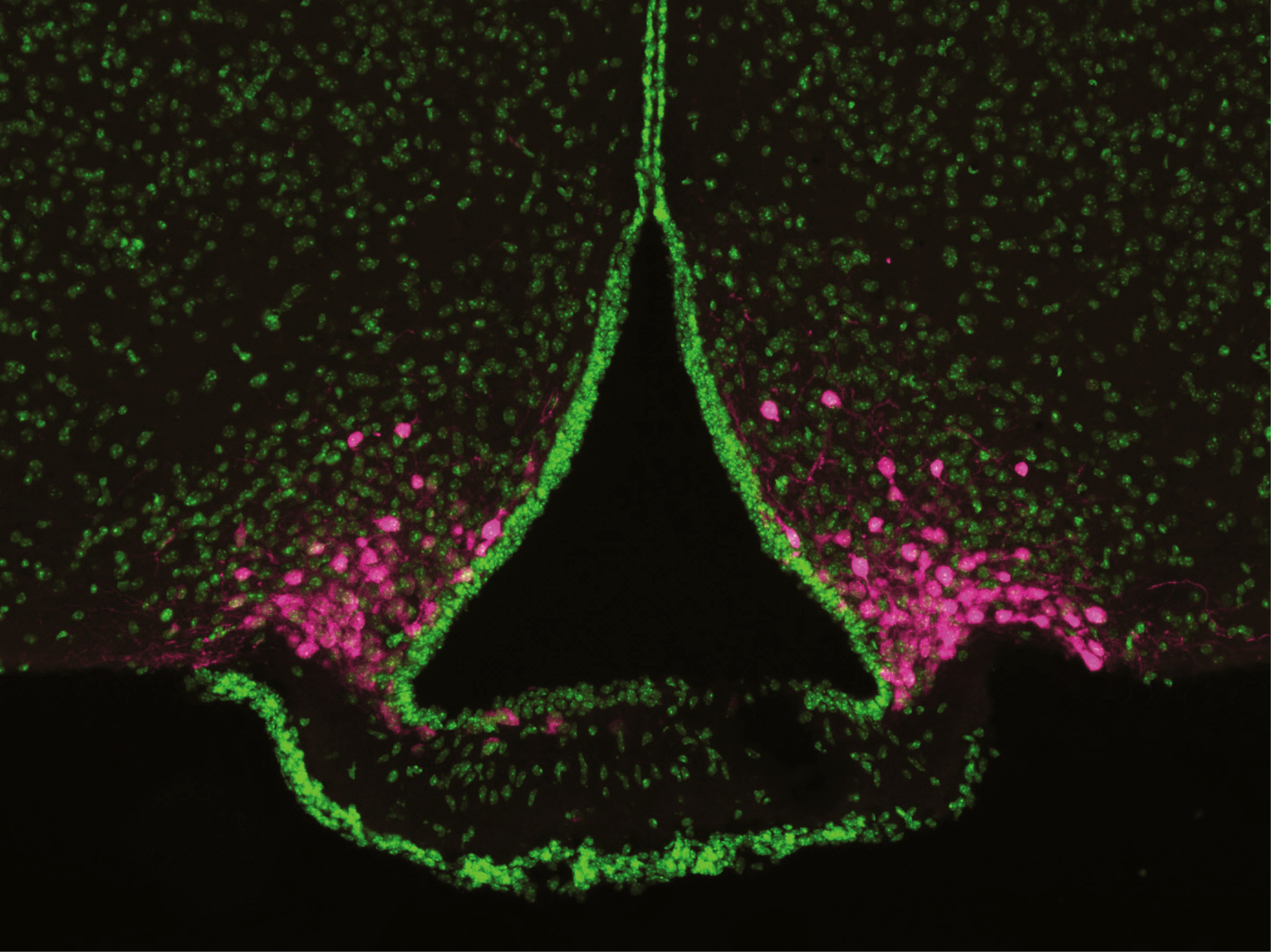 Photo of AgRP neurons of the arcuate nucleus