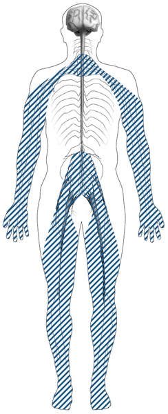 Illustration of a body outline with shaded lines showing the location of nerves affected by peripheral neuropathy. Peripheral nerves are in the toes, feet, legs, hands, and arms.