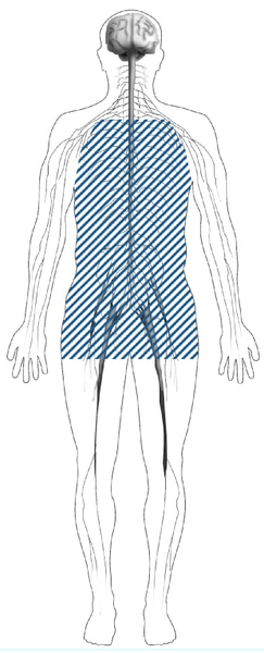 Illustration of a body with shaded lines showing the location of nerves affected by autonomic neuropathy. Autonomic nerves are in the heart, stomach, intestines, bladder, sex organs, sweat glands, eyes, and lungs.