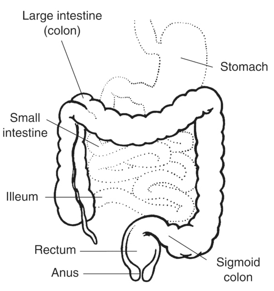 Illustration of the lower digestive tract with labels: stomach, large intestine (colon), small intestine, ileum, sigmoid colon, rectum, and anus.