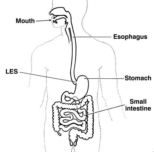 Illustration of the digestive system, with the mouth, esophagus, lower esophageal sphincter (LES), stomach, and small intestine labeled.