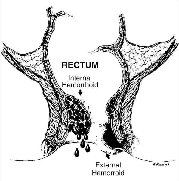 Illustration of the rectum with an internal hemorrhoid and an external hemorrhoid labeled.