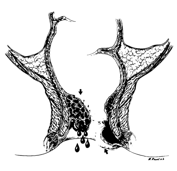 Illustration of the rectum with an internal and an external hemorrhoid.