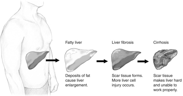 Illustration of the stages of liver damage: normal liver, fatty liver (where deposits of fat cause liver enlargement), liver fibrosis (where scar tissue forms and more liver cell injury occurs), and cirrhosis (where scar tissue makes the liver hard).
