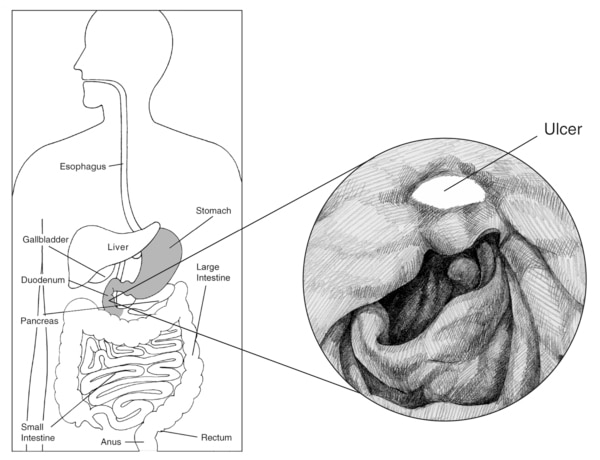 Illustration of the digestive system with the esophagus, stomach, liver, gallbladder, duodenum, pancreas, small intestine, large intestine, rectum, and anus labeled. Inset drawing shows a peptic ulcer with the ulcer labeled.