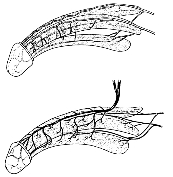 Two illustrations of the penis: the top one showing the arteries of the penis and the bottom one showing the veins of the penis.