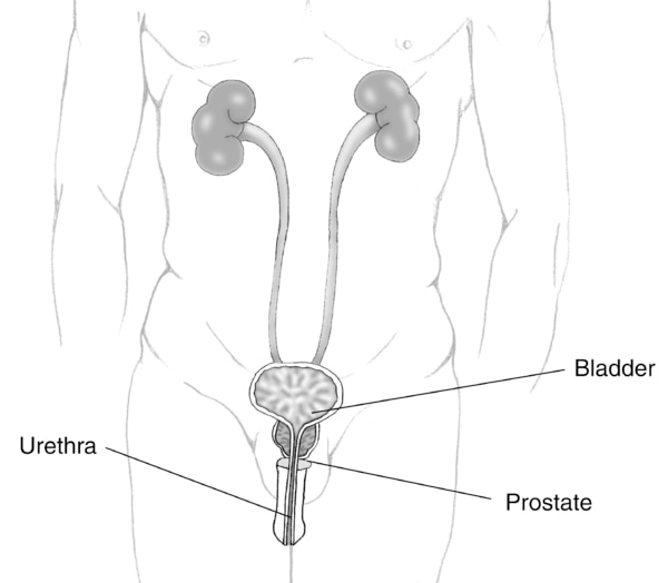 Illustration of the male urinary tract with prostate, urethra, and bladder labeled.