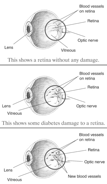 Illustration of three eye balls.  The top eyeball is healthy, while the lower two are not.