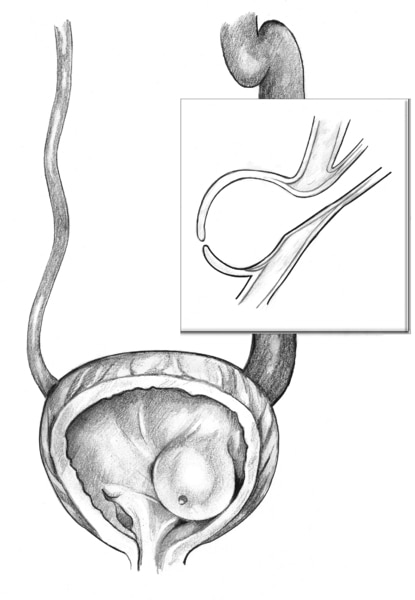 Front-view, cross-section drawing of a bladder and ureter showing a ureterocele. An inset shows a side-view cross section of the obstructed ureter.