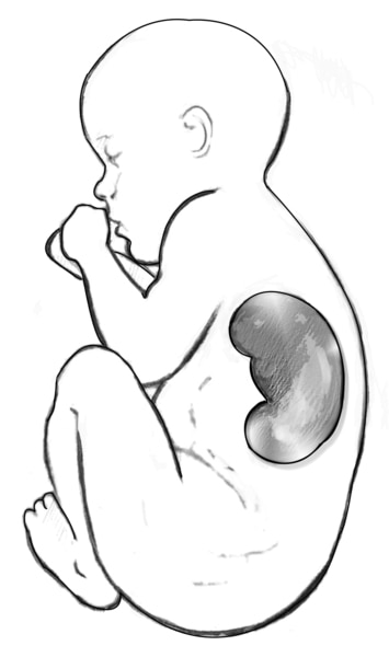 Drawing of a fetus with an enlarged kidney visible, as seen in an ultrasound.