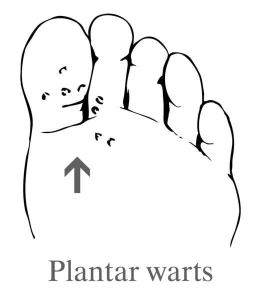 Drawing of a foot showing plantar warts.