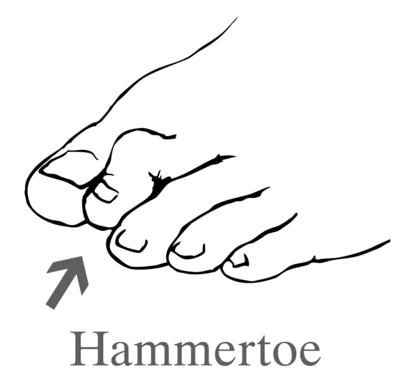 Drawing of a foot showing a hammertoe.