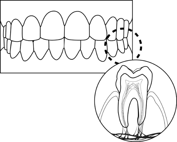 Drawing of teeth, gums and a single tooth.