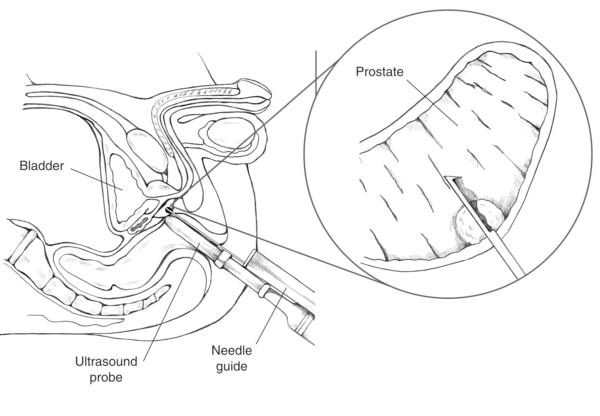 Cross-section diagram of transrectal prostate biopsy with ultrasound probe guiding the needle to the prostate. An inset shows a close-up of a needle entering the prostate.