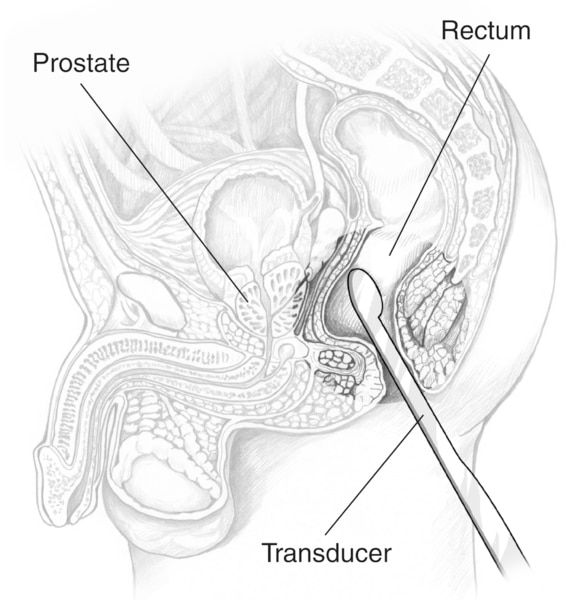 Cross-section drawing of a male pelvis with an ultrasound transducer inserted into the rectum to examine the prostate.  Labels point to the prostate, rectum, and transducer.