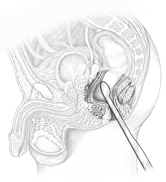 Cross-section drawing of a male pelvis with an ultrasound transducer inserted in the rectum to examine the prostate.