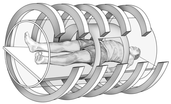 Drawing of a magnetic resonance imaging machine with a male patient lying on a table inside the hollow tunnel of the machine. The MRI magnets are shown as large bands that encircle the patient.