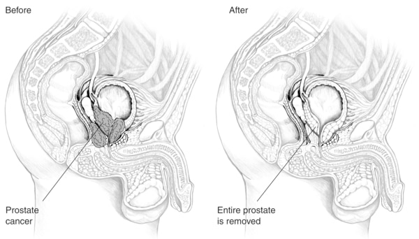 "Drawings of the male urinary tract. The left drawing, labeled ""Before,"" shows the urinary tract with the prostate intact. The right drawing, labeled ""After,"" shows the urinary tract with the prostate removed. Additional labels point to the prostate (left)"