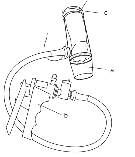 Drawing of a vacuum-constrictor device placed around the penis. Pictured here are the necessary components: (a) a plastic cylinder, which covers the penis; (b) a pump, which draws air out of the cylinder; (c) an elastic ring, which, when fitted over the b