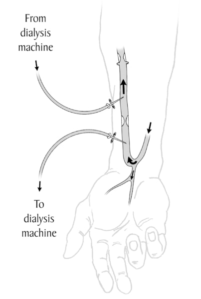 Drawing of a forearm with an arteriovenous fistula. Arrows show the direction of blood flow. Two needles are inserted into the fistula. Labels explain that one needle carries blood to the dialysis machine. The other returns blood from the machine.