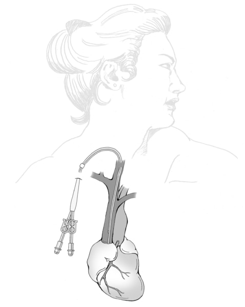 Drawing of a venous catheter for temporary hemodialysis access. The catheter is inserted through the skin near the collar bone. The catheter is connected to the  large vein from the heart. The other end of the catheter branches into two portals.