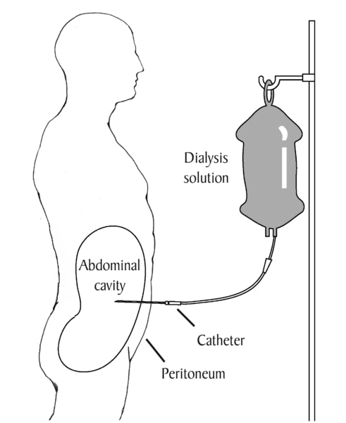Diagram of a patient receiving peritoneal dialysis. Labels point to dialysis solution, catheter, peritoneum, and abdominal cavity. Dialysis solution in a plastic bag drips through the catheter into the abdominal cavity.