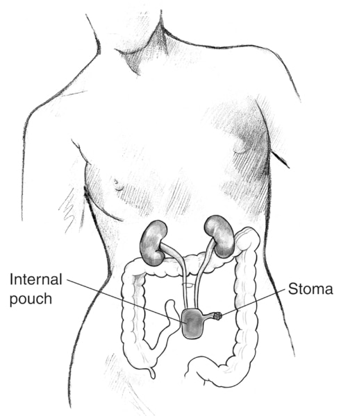 Drawing of a continent cutaneous reservoir. Labels point to the internal pouch and stoma.