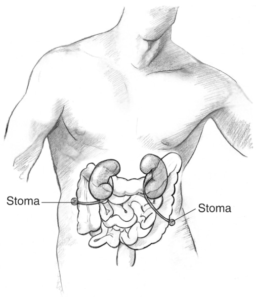 Drawing of a ureterostomy. Two stomas are labeled.