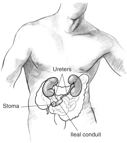 Drawing of an ileal conduit urostomy. Labels point to the stoma, ileal conduit, and ureters.