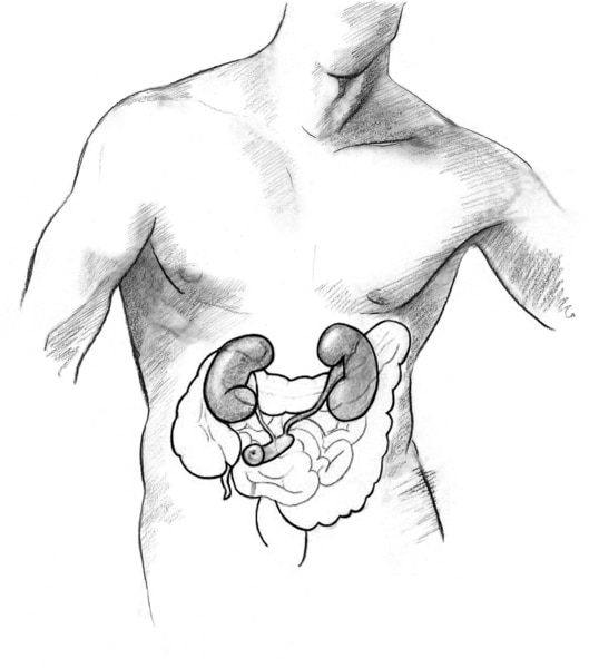 Drawing of an ileal conduit urostomy.