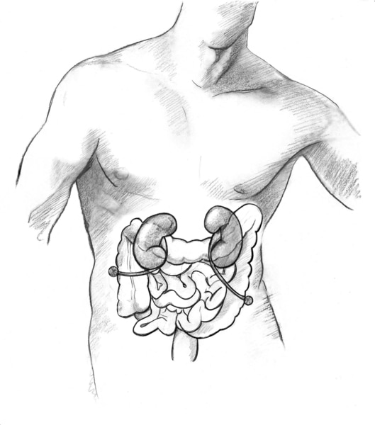 Drawing of a ureterostomy with two stomas.