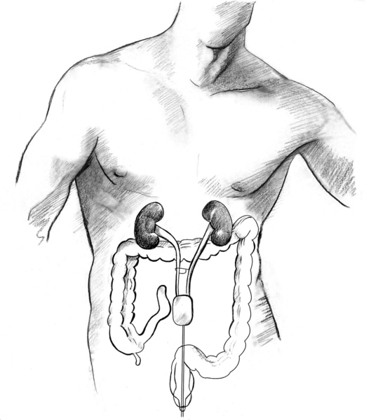 Drawing of a bladder substitute.