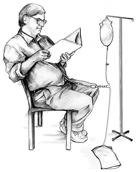 Drawing of male patient during peritoneal dialysis exchange.