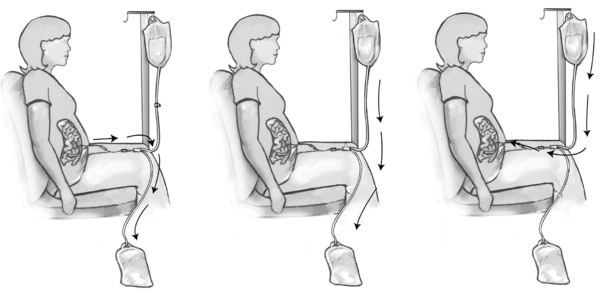 Diagram of three steps in peritoneal dialysis exchange.